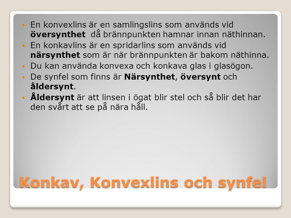 Konkav, Konvexlins och synfel En konvexlins är en samlingslins som används vid översynthet då brännpunkten hamnar innan näthinnan. En konkavlins är en