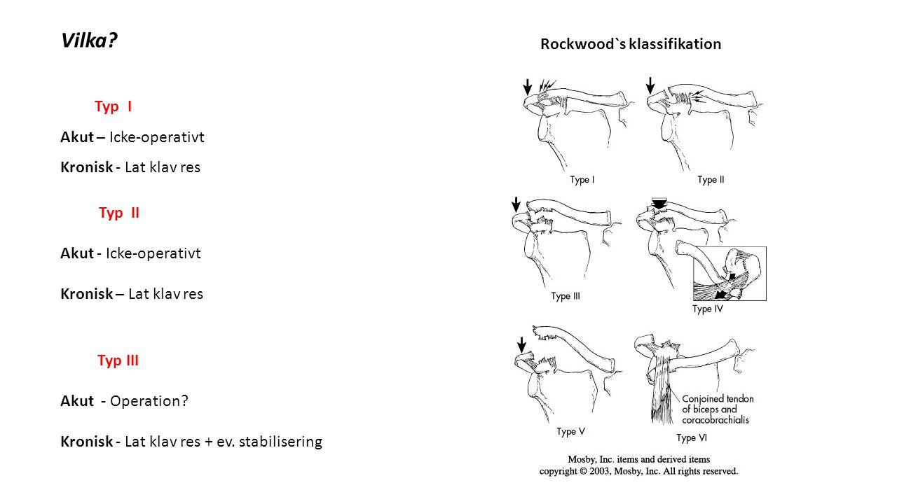 Typ IV Akut – Operation Kronisk – Lat klav res + stabilisering Typ V Akut – Operation (?) Kronisk – Lat klav res.