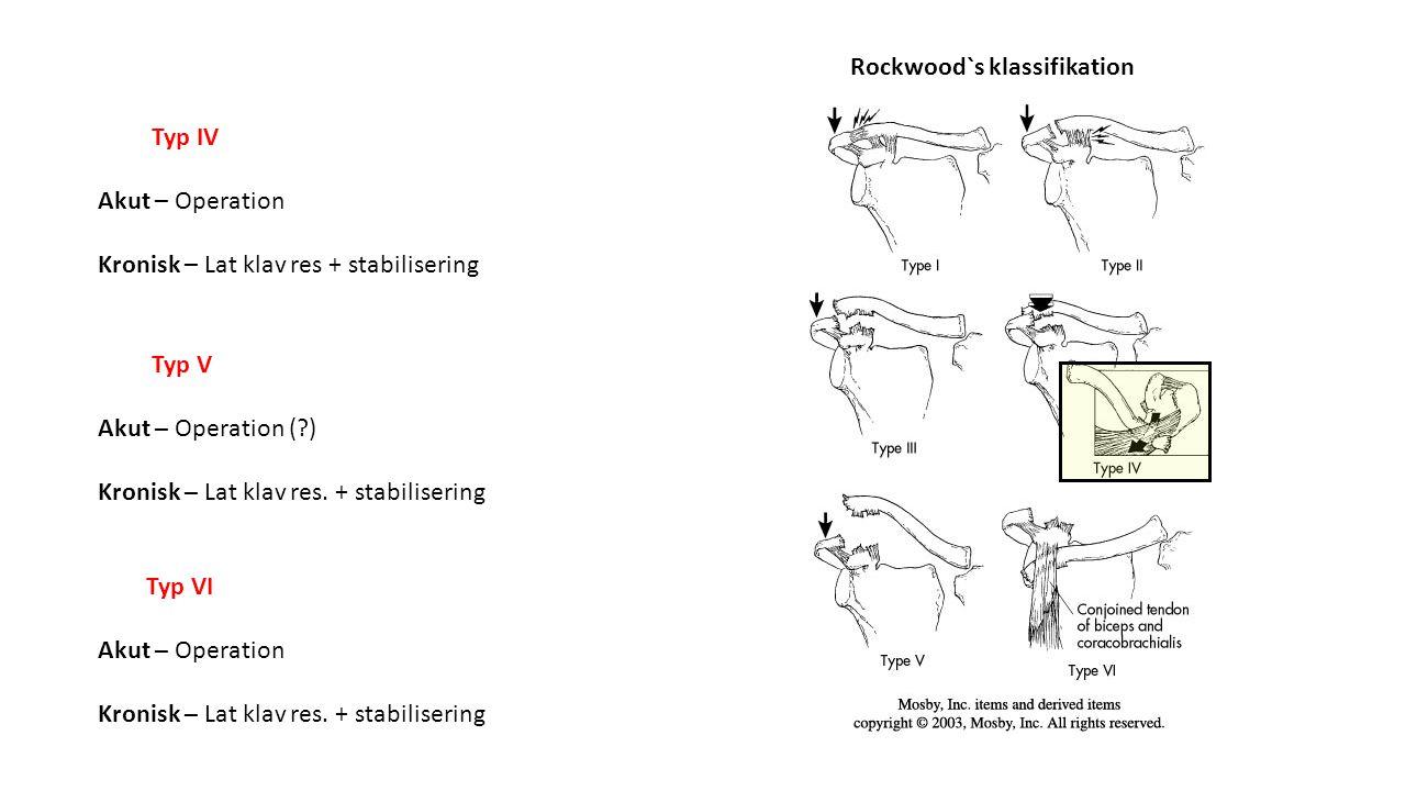 Typ IV Akut – Operation Kronisk – Lat klav res + stabilisering Typ V Akut – Operation (?) Kronisk – Lat klav res. + stabilisering Typ VI Akut – Operat