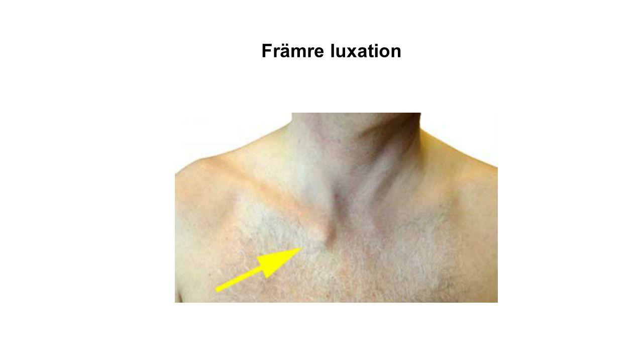 Närmare 98% av luxationer i sternoklavikulara leden går framåt.