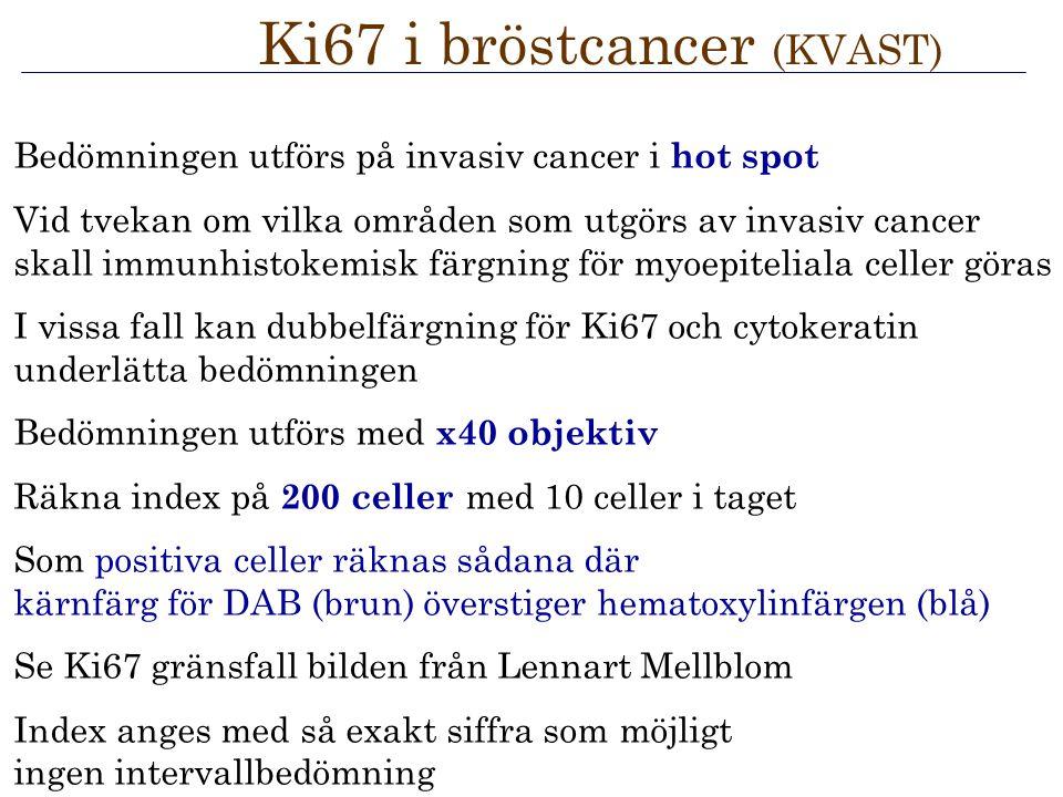 Bedömningen utförs på invasiv cancer i hot spot Vid tvekan om vilka områden som utgörs av invasiv cancer skall immunhistokemisk färgning för myoepitel