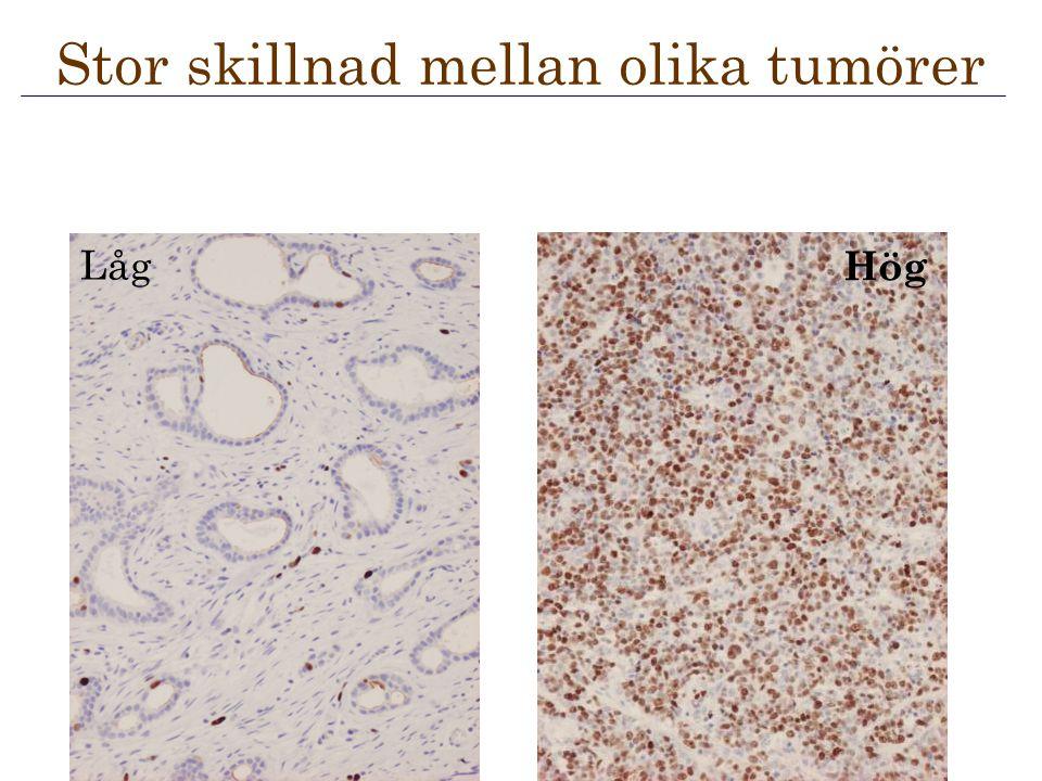 Låg Hög Stor skillnad mellan olika tumörer
