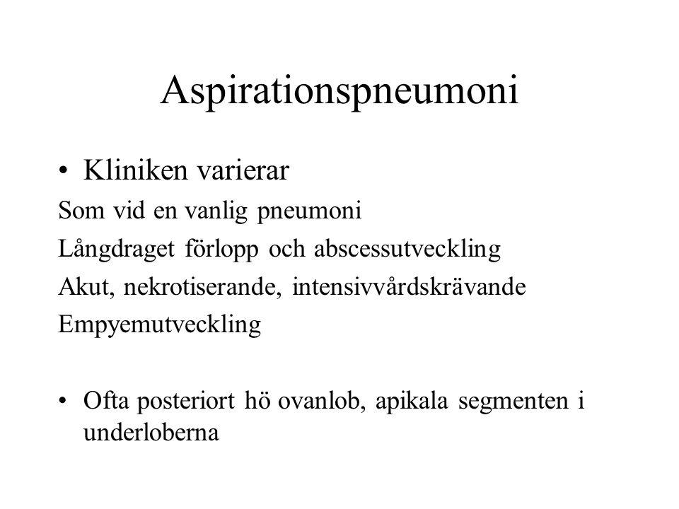 Aspirationspneumoni Kliniken varierar Som vid en vanlig pneumoni Långdraget förlopp och abscessutveckling Akut, nekrotiserande, intensivvårdskrävande Empyemutveckling Ofta posteriort hö ovanlob, apikala segmenten i underloberna