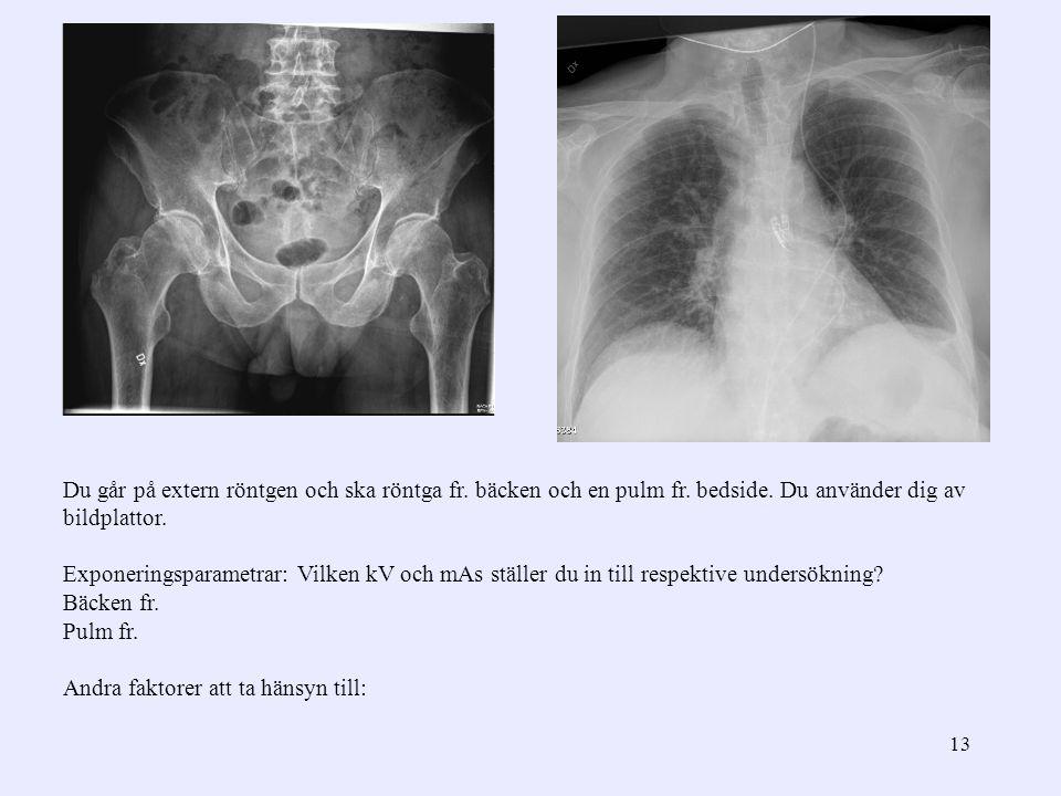 13 Du går på extern röntgen och ska röntga fr. bäcken och en pulm fr. bedside. Du använder dig av bildplattor. Exponeringsparametrar: Vilken kV och mA