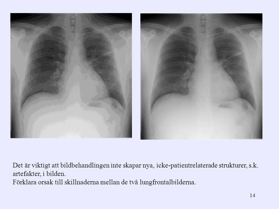 14 Det är viktigt att bildbehandlingen inte skapar nya, icke-patientrelaterade strukturer, s.k. artefakter, i bilden. Förklara orsak till skillnaderna
