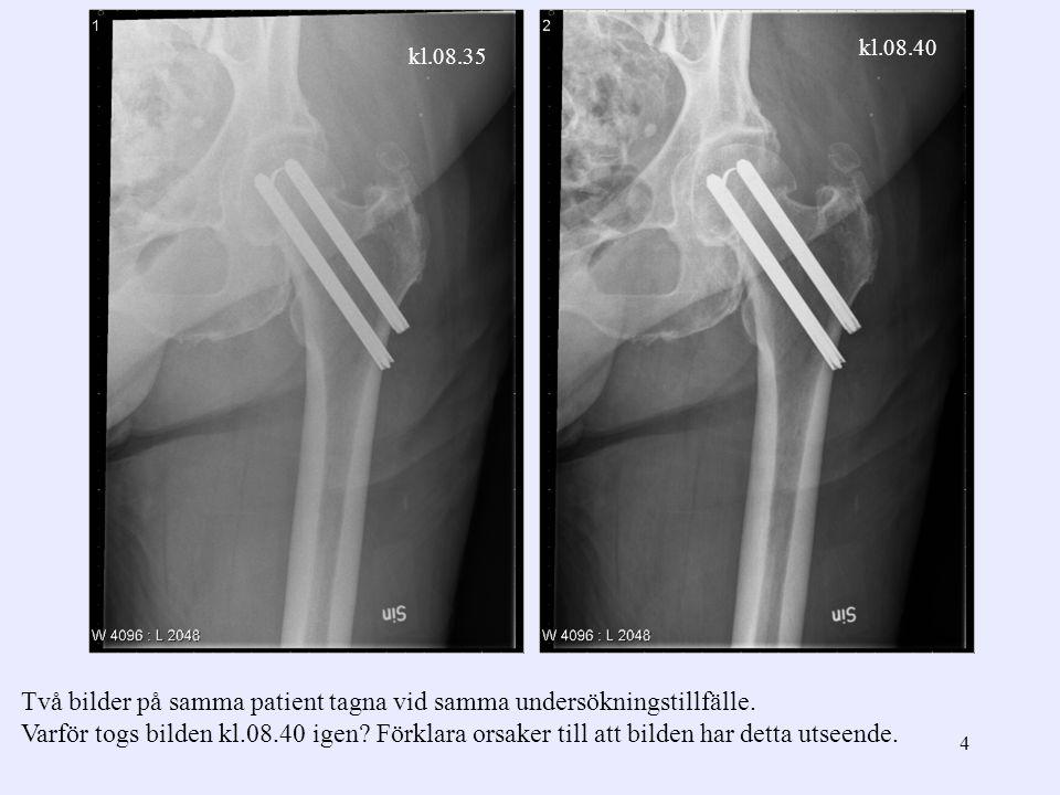 4 Två bilder på samma patient tagna vid samma undersökningstillfälle. Varför togs bilden kl.08.40 igen? Förklara orsaker till att bilden har detta uts
