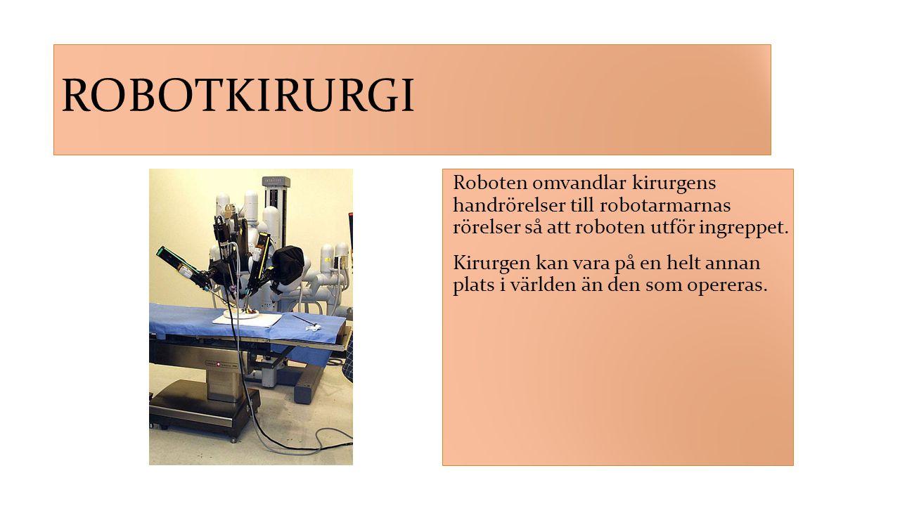 ROBOTKIRURGI Roboten omvandlar kirurgens handrörelser till robotarmarnas rörelser så att roboten utför ingreppet. Kirurgen kan vara på en helt annan p