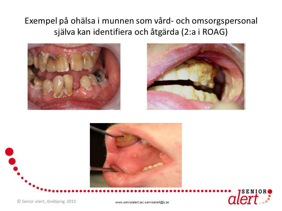 www.senioralert.se | senioralert@lj.se 223 575 munbedömningar enligt ROAG i Senior alert t om 141231 Knappt hälften av munbedömningarna enligt ROAG visar ohälsa 82 % av dem får åtgärd Kumulativt © Senior alert, Jönköping 2015