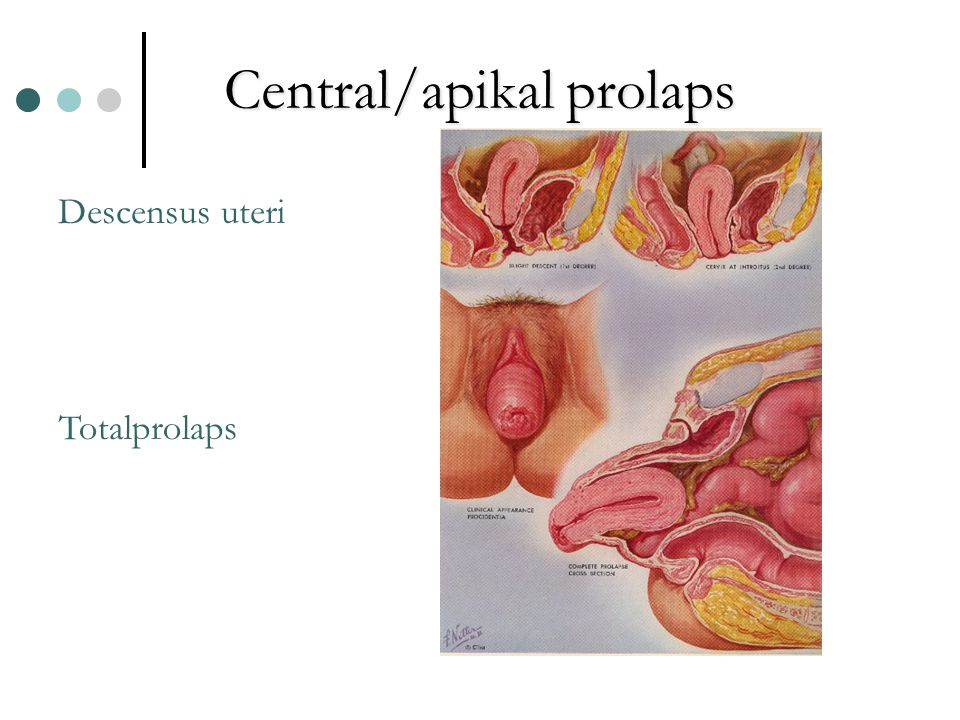 Central/apikal prolaps Descensus uteri Totalprolaps