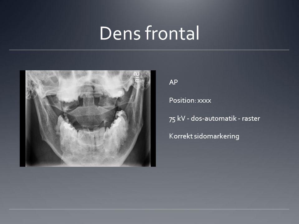 Dens frontal AP Position: xxxx 75 kV - dos-automatik - raster Korrekt sidomarkering