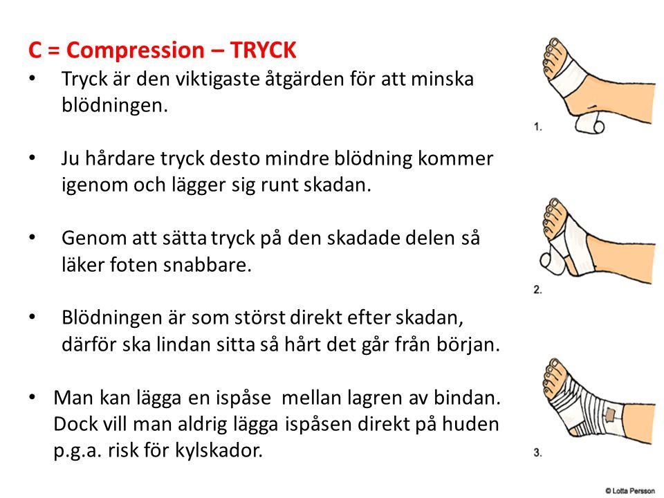 C = Compression – TRYCK Tryck är den viktigaste åtgärden för att minska blödningen. Ju hårdare tryck desto mindre blödning kommer igenom och lägger si
