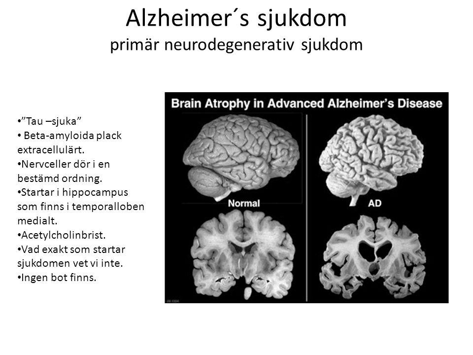 """Alzheimer´s sjukdom primär neurodegenerativ sjukdom """"Tau –sjuka"""" Beta-amyloida plack extracellulärt. Nervceller dör i en bestämd ordning. Startar i hi"""