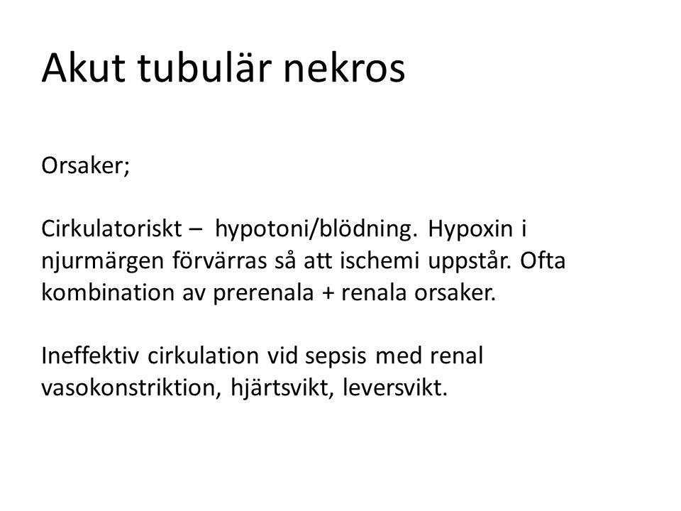 Akut tubulär nekros Orsaker; Cirkulatoriskt – hypotoni/blödning. Hypoxin i njurmärgen förvärras så att ischemi uppstår. Ofta kombination av prerenala