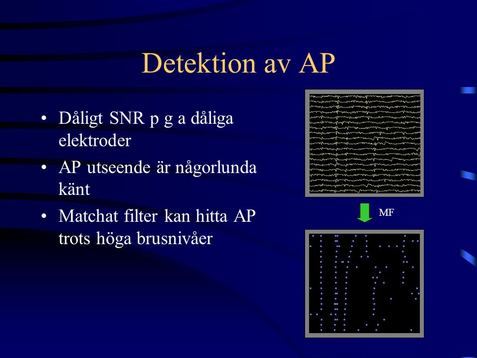 Detektion av AP Dåligt SNR p g a dåliga elektroder AP utseende är någorlunda känt Matchat filter kan hitta AP trots höga brusnivåer MF