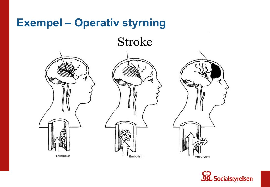 Exempel – Operativ styrning