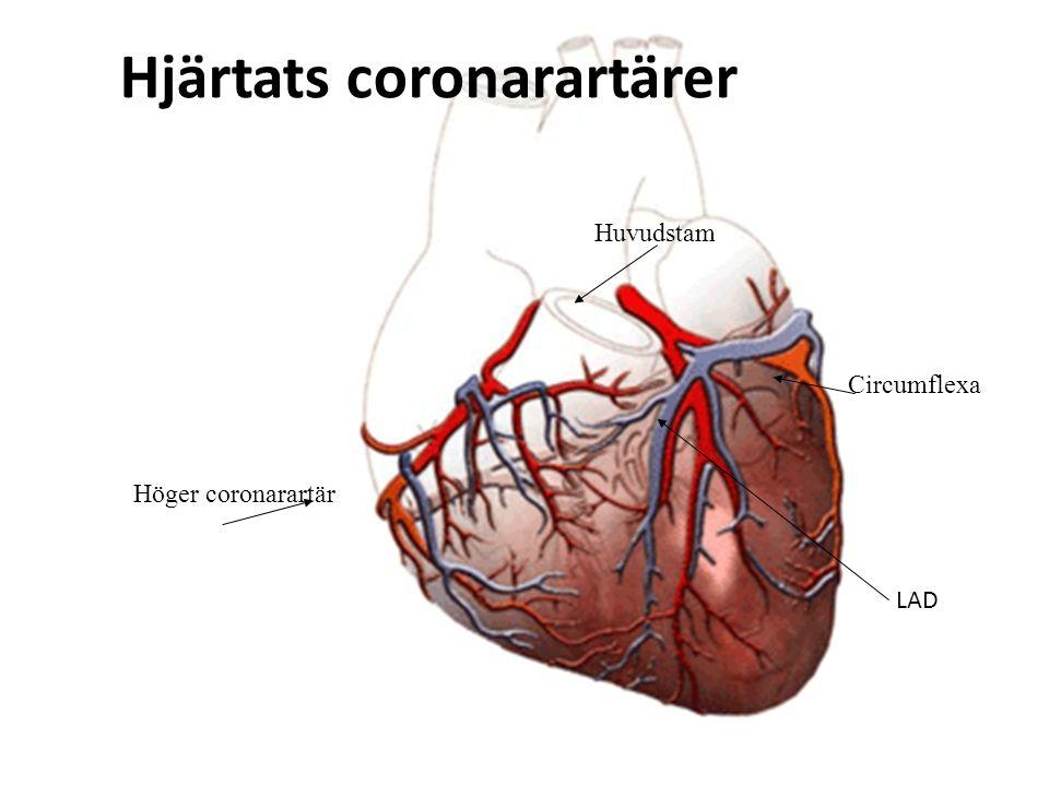 Höger coronarartär Circumflexa Huvudstam Hjärtats coronarartärer LAD