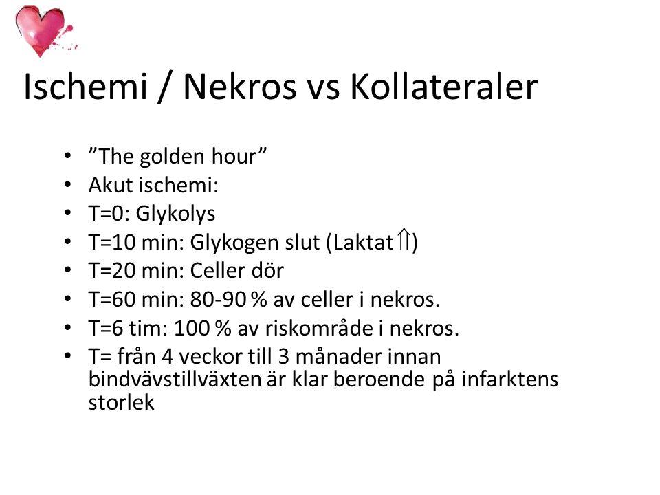 """Ischemi / Nekros vs Kollateraler """"The golden hour"""" Akut ischemi: T=0: Glykolys T=10 min: Glykogen slut (Laktat  ) T=20 min: Celler dör T=60 min: 80-9"""