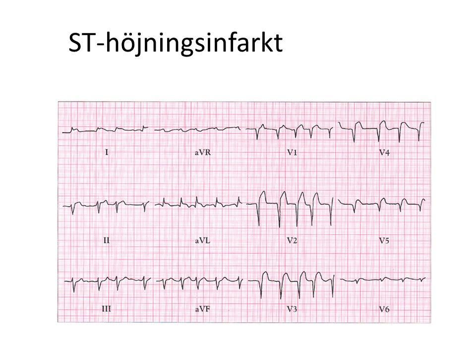 ST-höjningsinfarkt