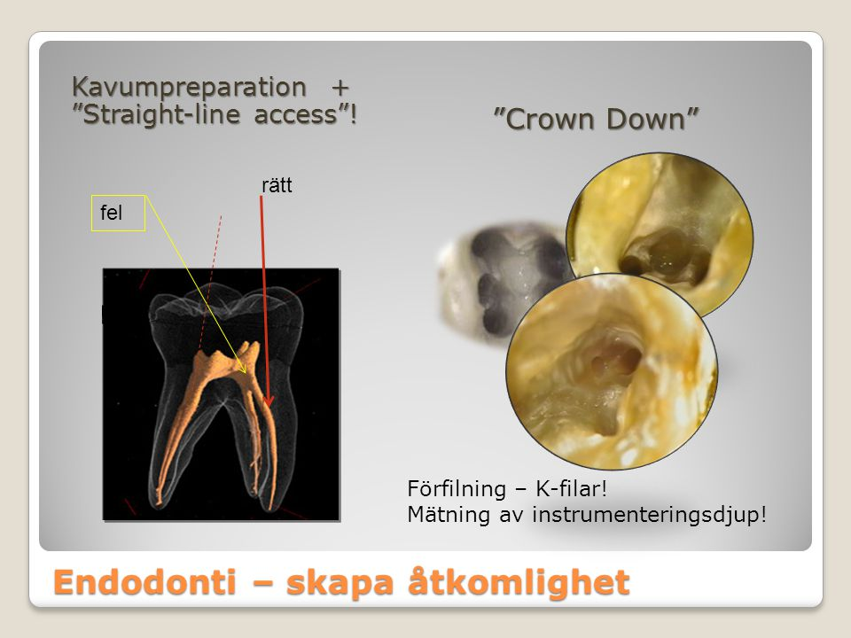 """Endodonti – skapa åtkomlighet Kavumpreparation + """"Straight-line access""""! """"Crown Down"""" fel rätt Förfilning – K-filar! Mätning av instrumenteringsdjup!"""