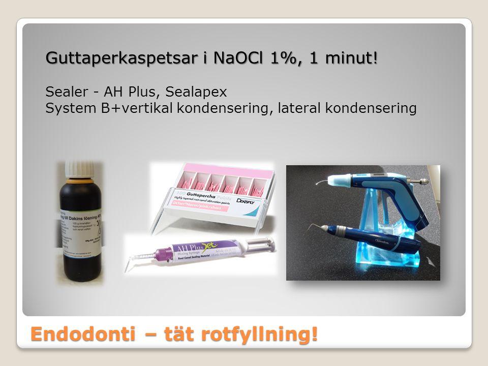 Endodonti – tät rotfyllning! Guttaperkaspetsar i NaOCl 1%, 1 minut! Sealer - AH Plus, Sealapex System B+vertikal kondensering, lateral kondensering