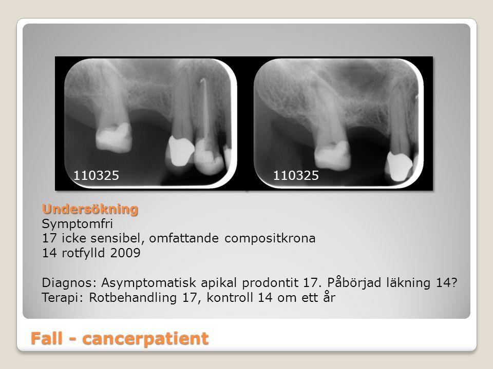 Fall - cancerpatient 110325 Undersökning Symptomfri 17 icke sensibel, omfattande compositkrona 14 rotfylld 2009 Diagnos: Asymptomatisk apikal prodonti