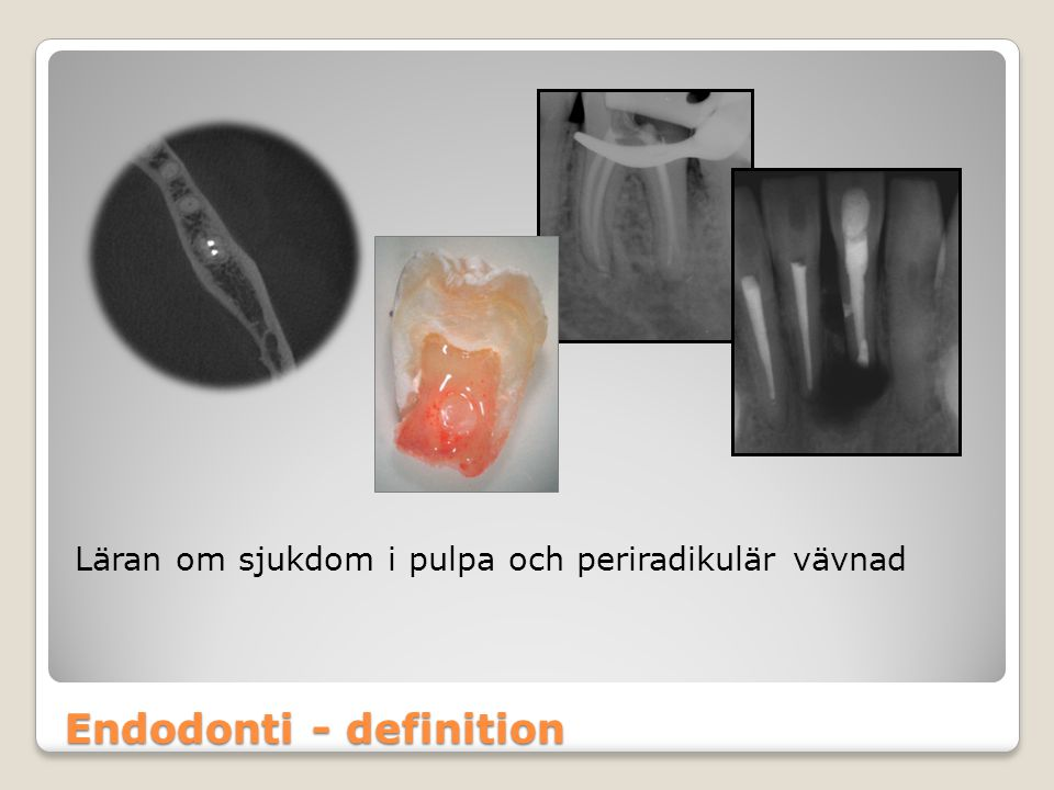 Endodonti - definition Läran om sjukdom i pulpa och periradikulär vävnad