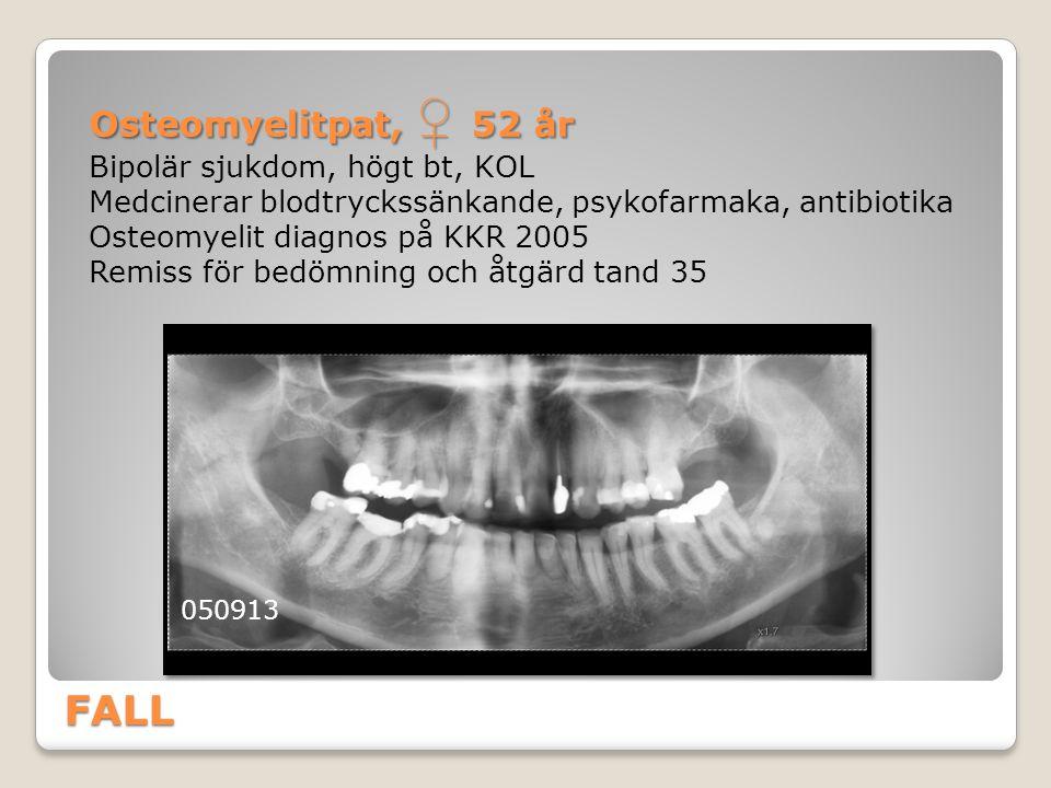 FALL Osteomyelitpat, ♀ 52 år Bipolär sjukdom, högt bt, KOL Medcinerar blodtryckssänkande, psykofarmaka, antibiotika Osteomyelit diagnos på KKR 2005 Re