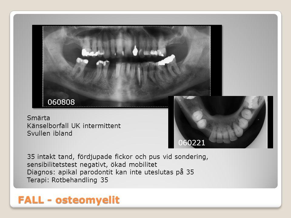 FALL - osteomyelit 060808 Smärta Känselborfall UK intermittent Svullen ibland 35 intakt tand, fördjupade fickor och pus vid sondering, sensibilitetste