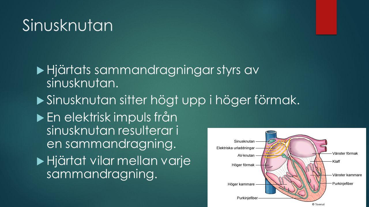 Sinusknutan  Hjärtats sammandragningar styrs av sinusknutan.  Sinusknutan sitter högt upp i höger förmak.  En elektrisk impuls från sinusknutan res