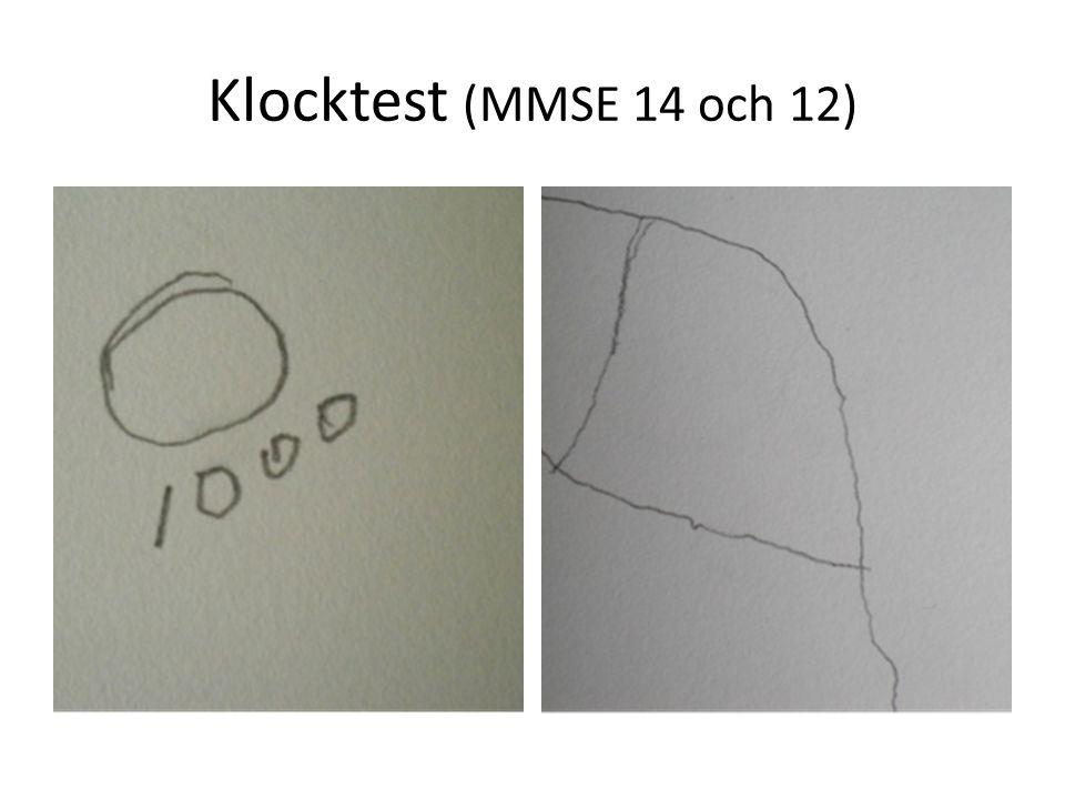 Klocktest (MMSE 14 och 12)