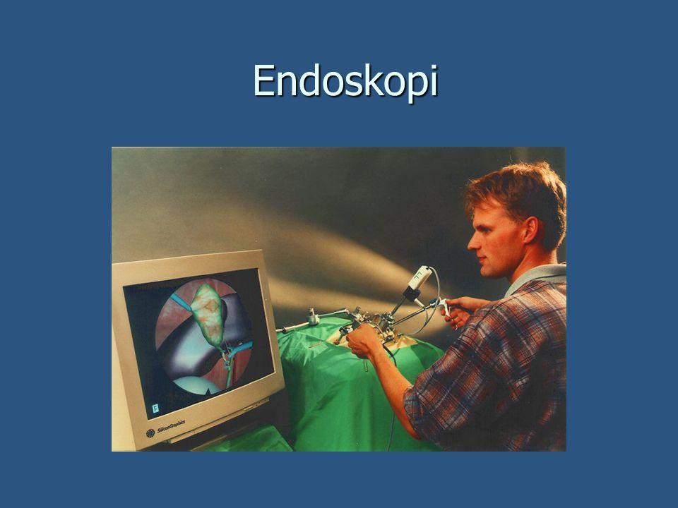 Endoskopi Endoskopi