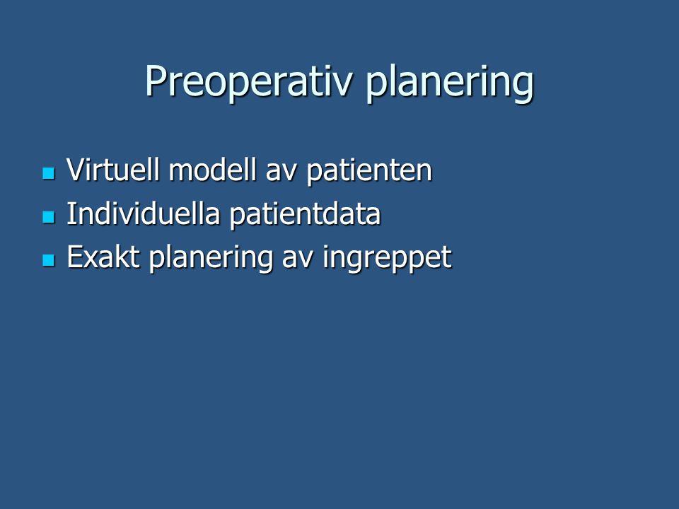 Preoperativ planering Virtuell modell av patienten Virtuell modell av patienten Individuella patientdata Individuella patientdata Exakt planering av ingreppet Exakt planering av ingreppet