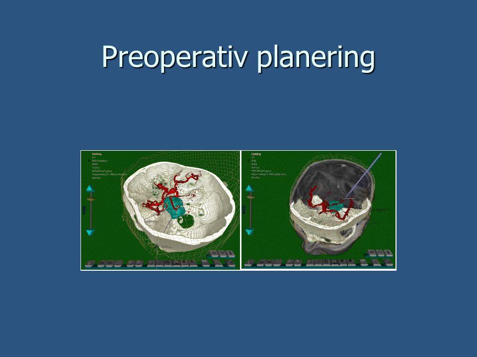Telemedicin Fjärrdiagnos Fjärrdiagnos Operationer på avstånd Operationer på avstånd Nätverksförseningar Nätverksförseningar