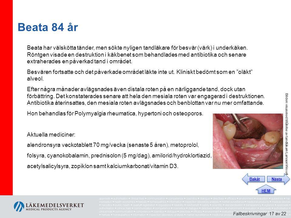 Beata 84 år Beata har välskötta tänder, men sökte nyligen tandläkare för besvär (värk) i underkäken.