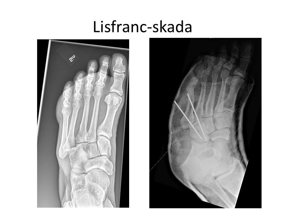Lisfranc-skada