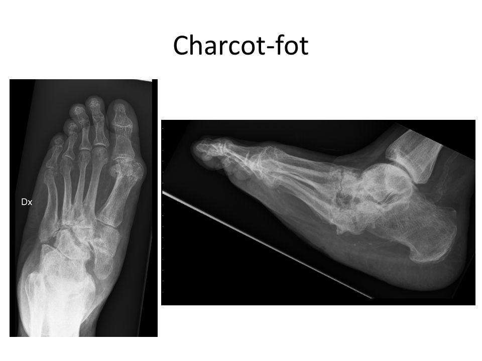 Charcot-fot