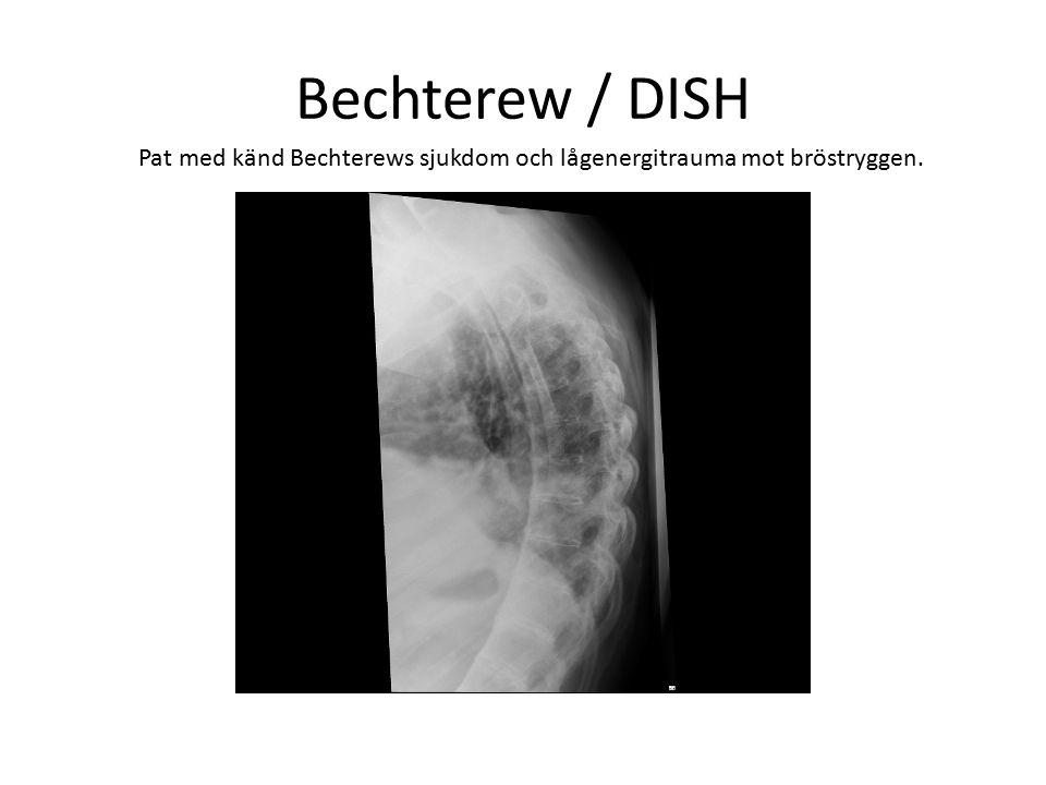 Bechterew / DISH Pat med känd Bechterews sjukdom och lågenergitrauma mot bröstryggen.