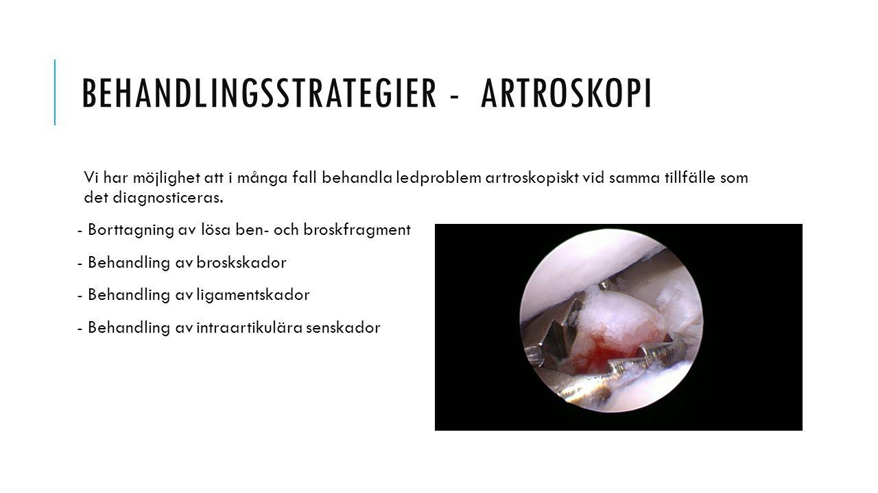 BEHANDLINGSSTRATEGIER - ARTROSKOPI Vi har möjlighet att i många fall behandla ledproblem artroskopiskt vid samma tillfälle som det diagnosticeras. - B