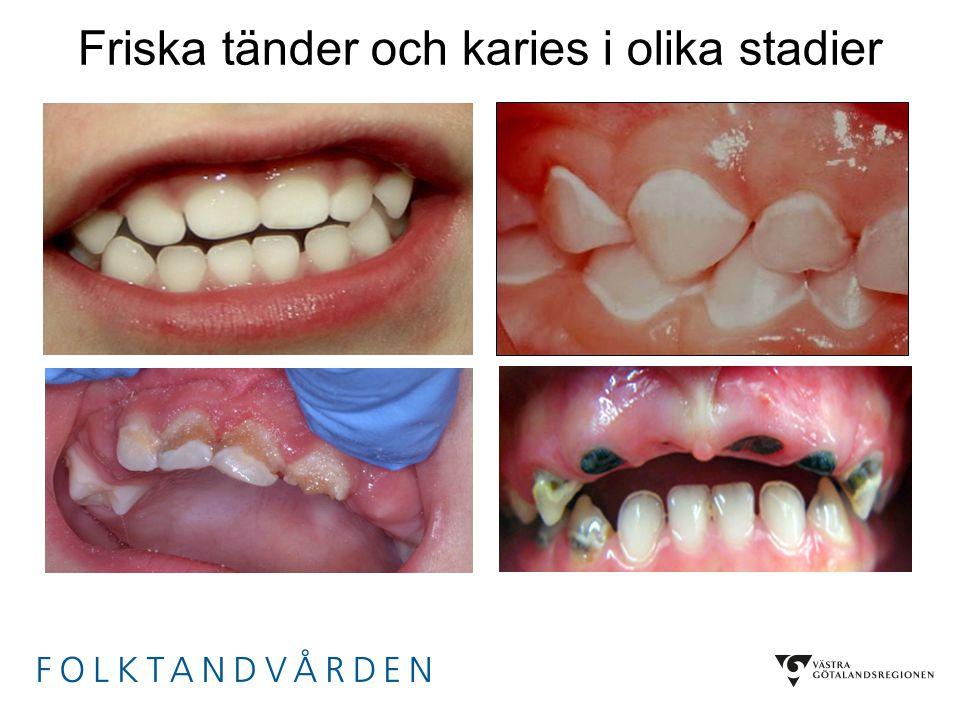 Friska tänder och karies i olika stadier Frisk 4-åring