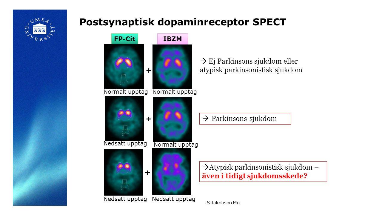 IBZMFP-Cit Postsynaptisk dopaminreceptor SPECT S Jakobson Mo Normalt upptag Nedsatt upptag Normalt upptag Nedsatt upptag + + +  Ej Parkinsons sjukdom