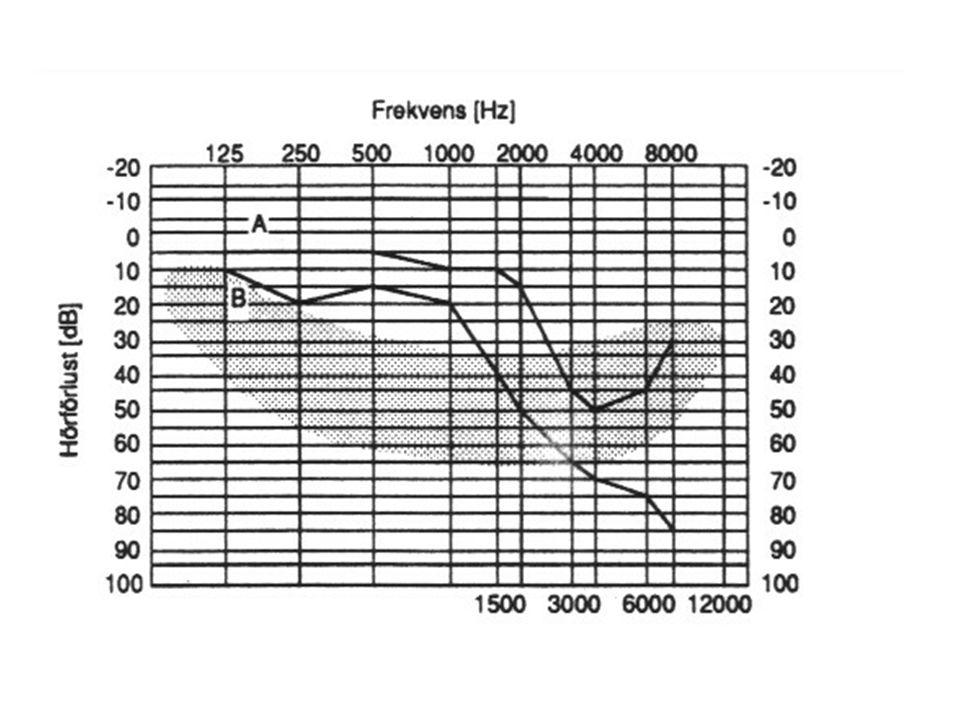 Föreskrift om buller: AFS 1992:10 Riktlinjer för maximalt tillåten exponering i arbetslivet för hörselskadande buller: (Formellt inte gränsvärden, men betraktas ofta som sådana) Ekvivalent ljudnivå under en 8-timmars arbetsdag 85 dB(A) *) Maximal ljudnivå (med undantag för impulsljud) 115 dB(A) *) Impulstoppvärde 140 dB(C)**) *) Angivet värde för ekvivalent ljudnivå innefattar även eventuellt förekommande impulsljud.