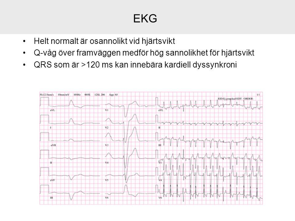 EKG Helt normalt är osannolikt vid hjärtsvikt Q-våg över framväggen medför hög sannolikhet för hjärtsvikt QRS som är >120 ms kan innebära kardiell dys