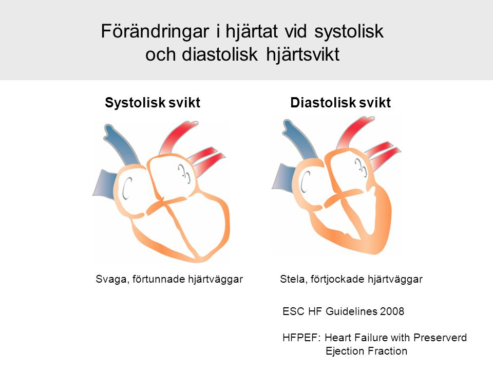 Förändringar i hjärtat vid systolisk och diastolisk hjärtsvikt Systolisk sviktDiastolisk svikt Svaga, förtunnade hjärtväggarStela, förtjockade hjärtvä