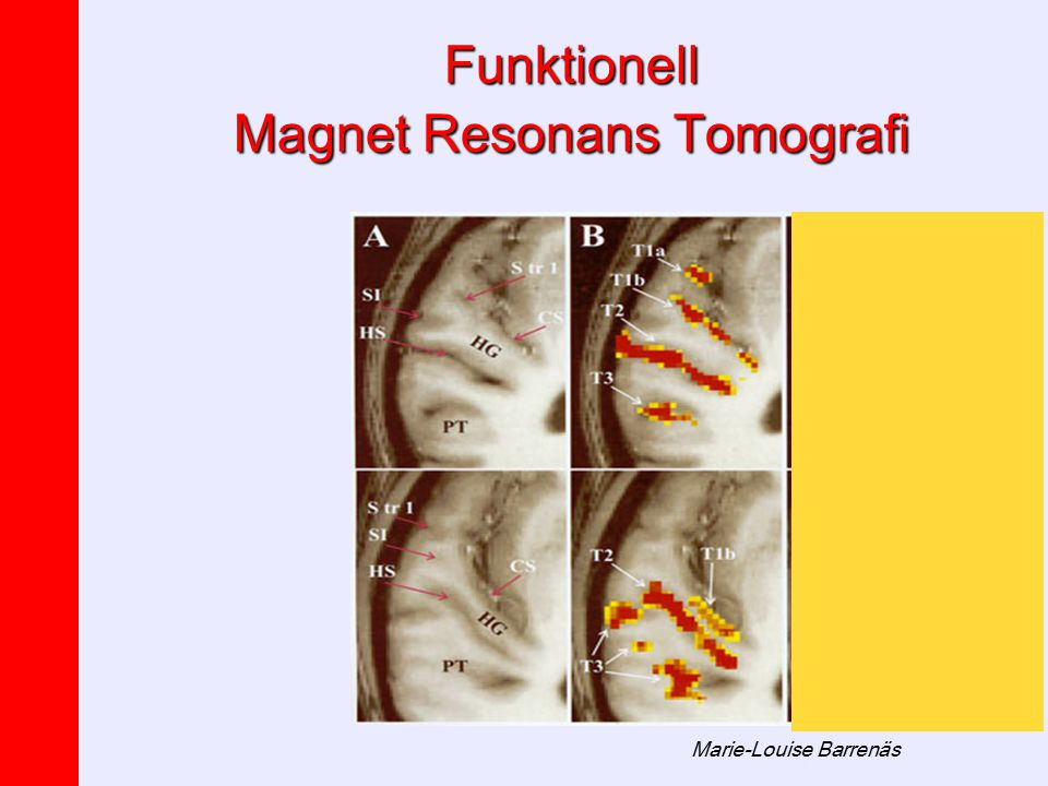 Marie-Louise Barrenäs Funktionell Magnet Resonans Tomografi