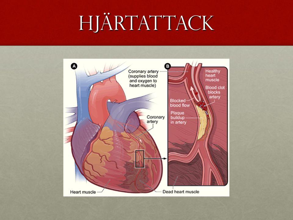hjärtattack
