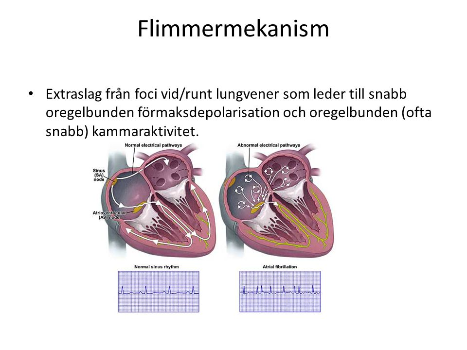 Flimmermekanism Extraslag från foci vid/runt lungvener som leder till snabb oregelbunden förmaksdepolarisation och oregelbunden (ofta snabb) kammaraktivitet.