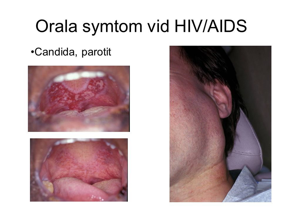 Orala symtom vid HIV/AIDS Candida, parotit