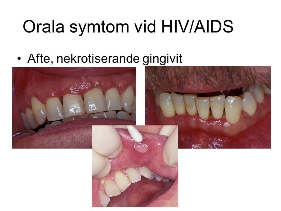 Orala symtom vid HIV/AIDS Afte, nekrotiserande gingivit
