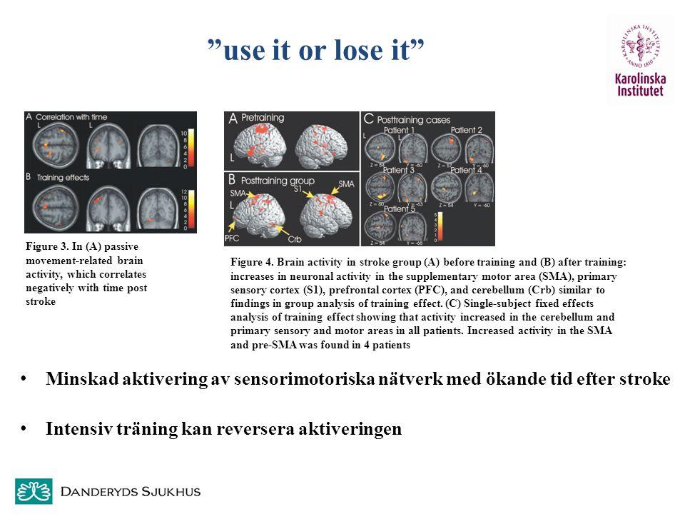 """""""use it or lose it"""" Minskad aktivering av sensorimotoriska nätverk med ökande tid efter stroke Intensiv träning kan reversera aktiveringen Figure 3. I"""