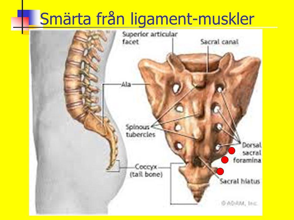 Smärta från ligament-muskler